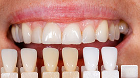 Highaland Cosmetic Dentist | veneers  | Highland Family Dentistry